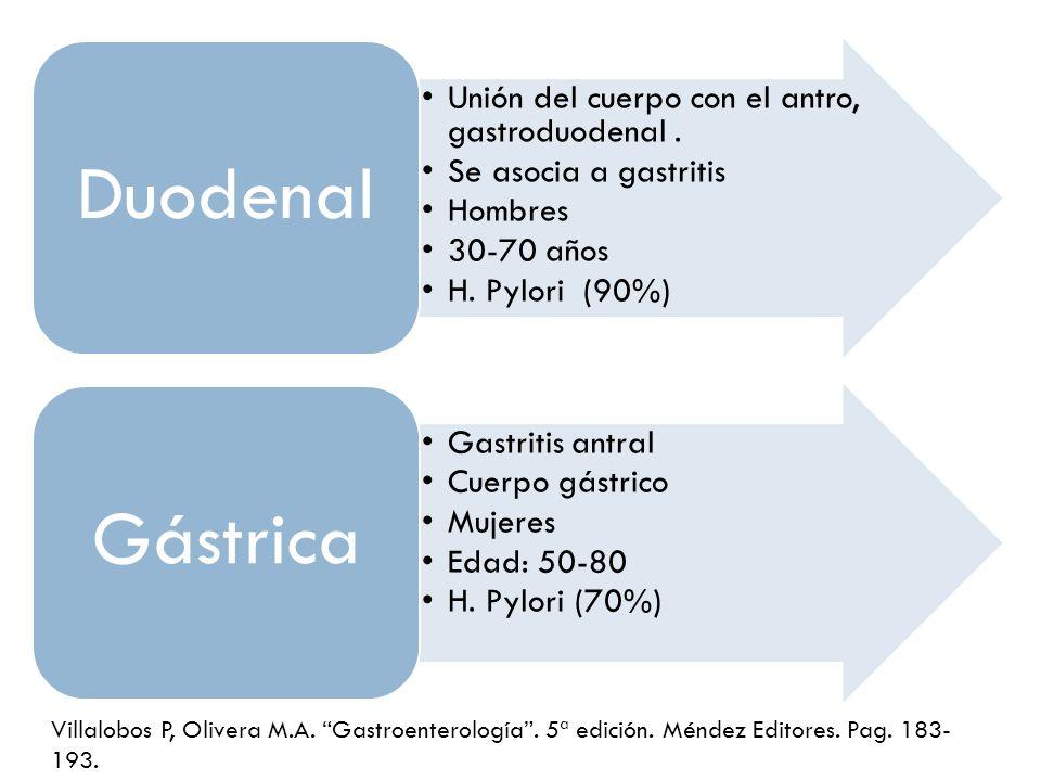Unión del cuerpo con el antro, gastroduodenal. Se asocia a gastritis Hombres 30-70 años H. Pylori (90%) Duodenal Gastritis antral Cuerpo gástrico Muje