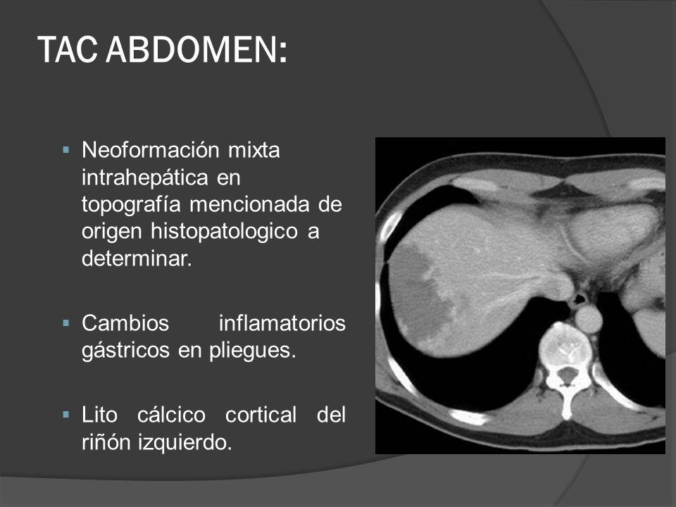 TAC ABDOMEN: Neoformación mixta intrahepática en topografía mencionada de origen histopatologico a determinar. Cambios inflamatorios gástricos en plie