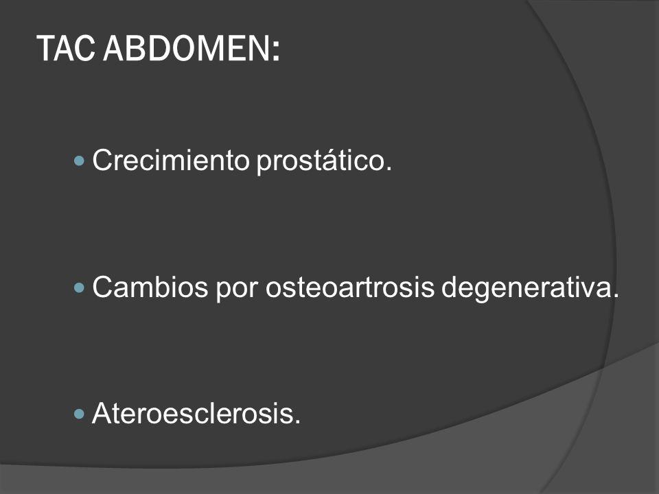 TAC ABDOMEN: Crecimiento prostático. Cambios por osteoartrosis degenerativa. Ateroesclerosis.