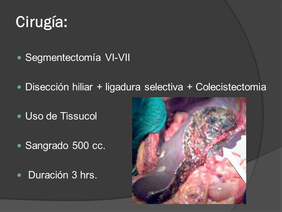 Cirugía: Segmentectomía VI-VII Disección hiliar + ligadura selectiva + Colecistectomia Uso de Tissucol Sangrado 500 cc. Duración 3 hrs.