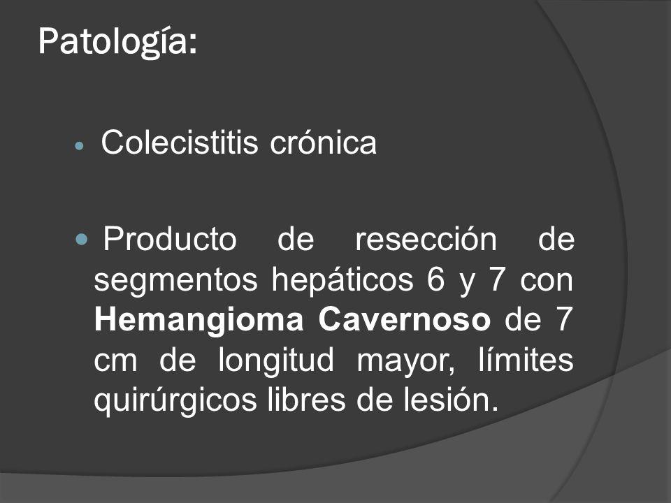Patología: Colecistitis crónica Producto de resección de segmentos hepáticos 6 y 7 con Hemangioma Cavernoso de 7 cm de longitud mayor, límites quirúrg