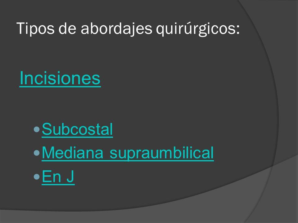 Tipos de abordajes quirúrgicos: Incisiones Subcostal Mediana supraumbilical En J