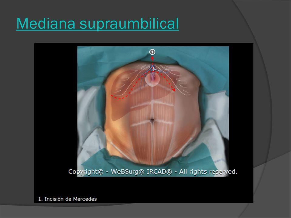 Mediana supraumbilical