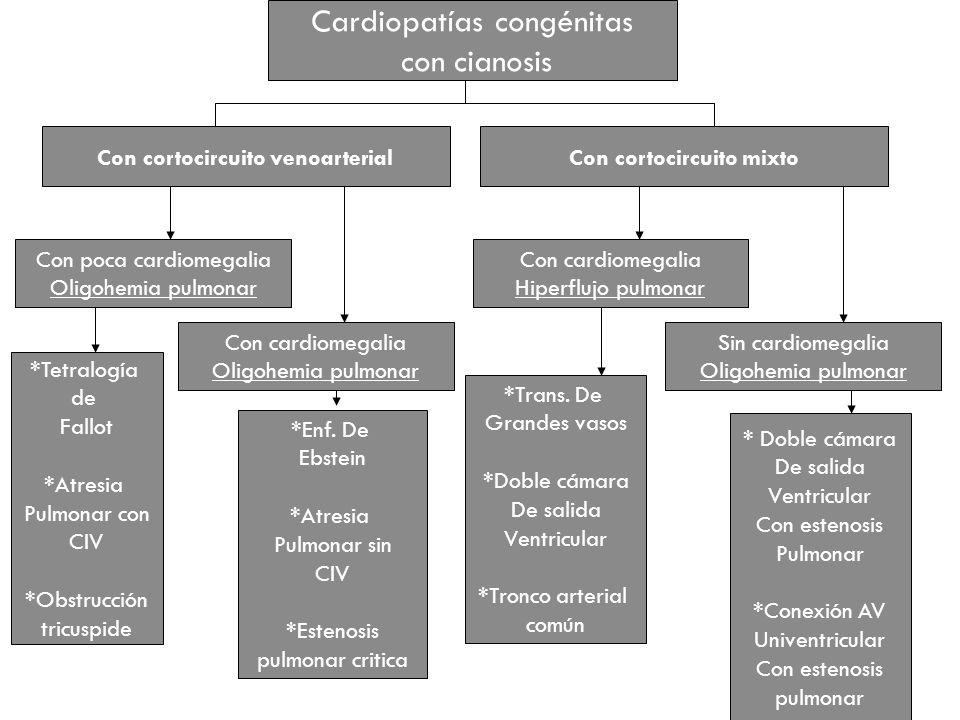 Cardiopatías congénitas con cianosis Con cortocircuito venoarterialCon cortocircuito mixto Con poca cardiomegalia Oligohemia pulmonar Con cardiomegali