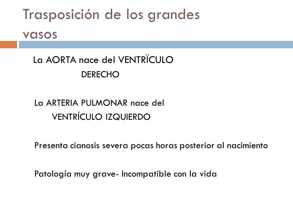 Trasposición de los grandes vasos La AORTA nace del VENTRÏCULO DERECHO La ARTERIA PULMONAR nace del VENTRÍCULO IZQUIERDO Presenta cianosis severa poca