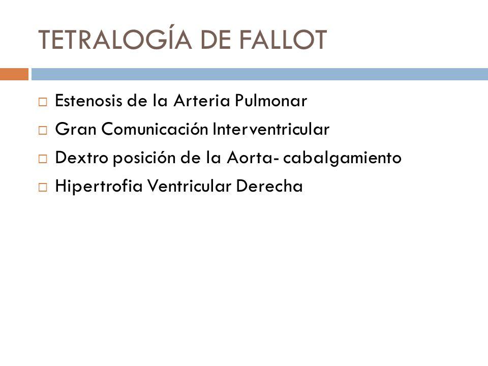 TETRALOGÍA DE FALLOT Estenosis de la Arteria Pulmonar Gran Comunicación Interventricular Dextro posición de la Aorta- cabalgamiento Hipertrofia Ventri