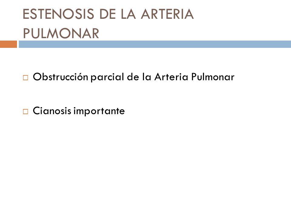 ESTENOSIS DE LA ARTERIA PULMONAR Obstrucción parcial de la Arteria Pulmonar Cianosis importante