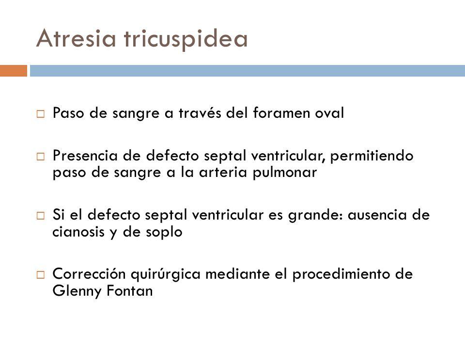 Atresia tricuspidea Paso de sangre a través del foramen oval Presencia de defecto septal ventricular, permitiendo paso de sangre a la arteria pulmonar
