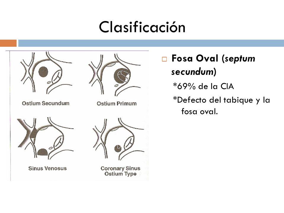 Clasificación Fosa Oval (septum secundum) *69% de la CIA *Defecto del tabique y la fosa oval.