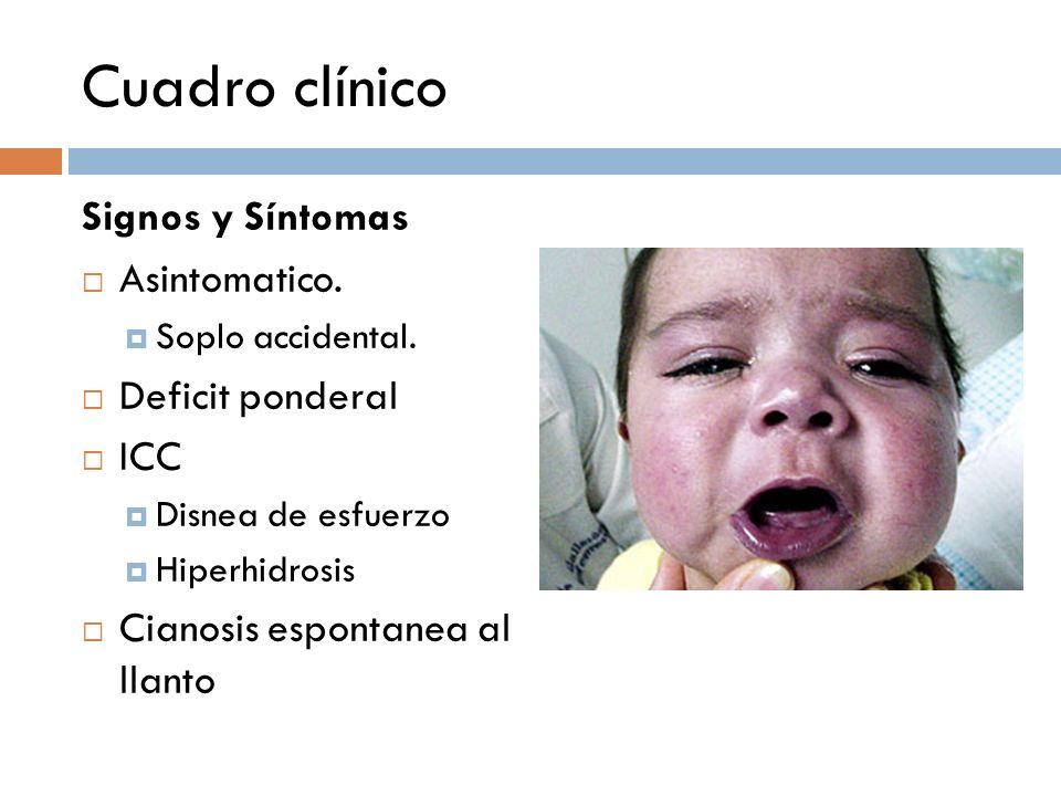 Cuadro clínico Signos y Síntomas Asintomatico. Soplo accidental. Deficit ponderal ICC Disnea de esfuerzo Hiperhidrosis Cianosis espontanea al llanto.