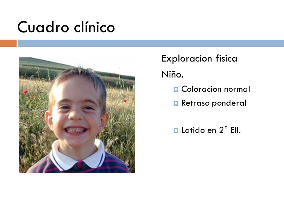 Cuadro clínico Exploracion fisica Niño. Coloracion normal Retraso ponderal Latido en 2° EII.