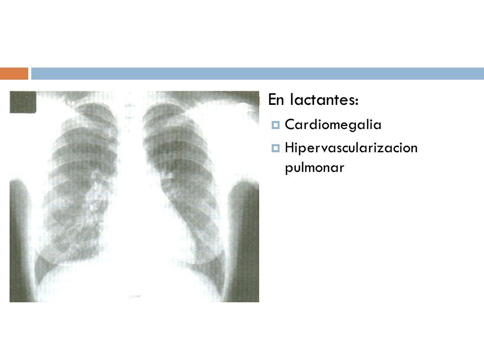 En lactantes: Cardiomegalia Hipervascularizacion pulmonar