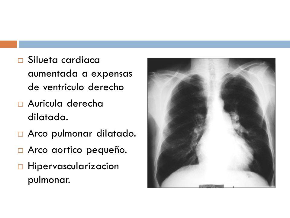 Silueta cardiaca aumentada a expensas de ventriculo derecho Auricula derecha dilatada. Arco pulmonar dilatado. Arco aortico pequeño. Hipervascularizac