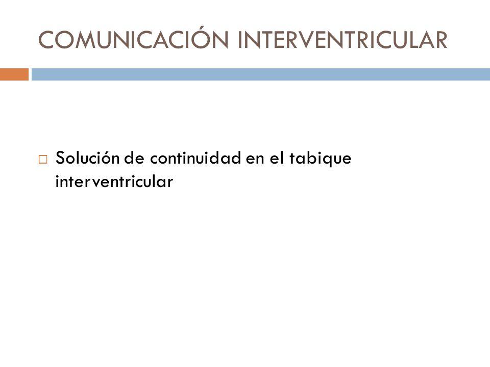 COMUNICACIÓN INTERVENTRICULAR Solución de continuidad en el tabique interventricular