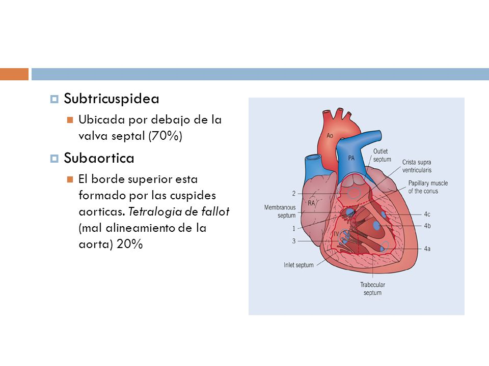 Subtricuspidea Ubicada por debajo de la valva septal (70%) Subaortica El borde superior esta formado por las cuspides aorticas. Tetralogia de fallot (