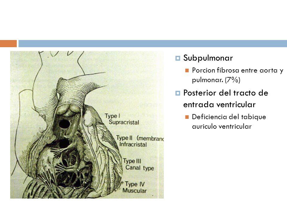 Subpulmonar Porcion fibrosa entre aorta y pulmonar. (7%) Posterior del tracto de entrada ventricular Deficiencia del tabique auriculo ventricular