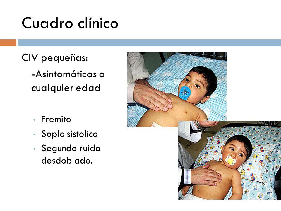 Cuadro clínico CIV pequeñas: -Asintomáticas a cualquier edad Fremito Soplo sistolico Segundo ruido desdoblado.