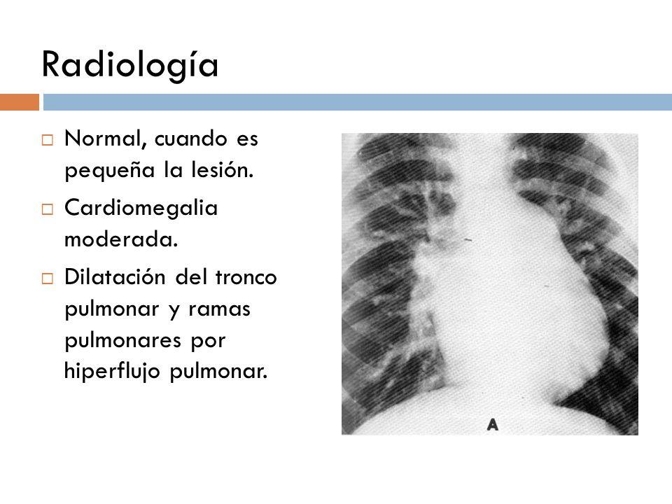 Radiología Normal, cuando es pequeña la lesión. Cardiomegalia moderada. Dilatación del tronco pulmonar y ramas pulmonares por hiperflujo pulmonar.