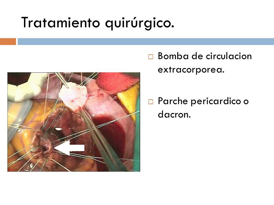 Tratamiento quirúrgico. Bomba de circulacion extracorporea. Parche pericardico o dacron.