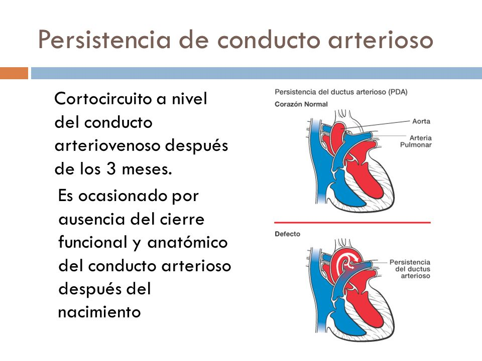 Persistencia de conducto arterioso Cortocircuito a nivel del conducto arteriovenoso después de los 3 meses. Es ocasionado por ausencia del cierre func