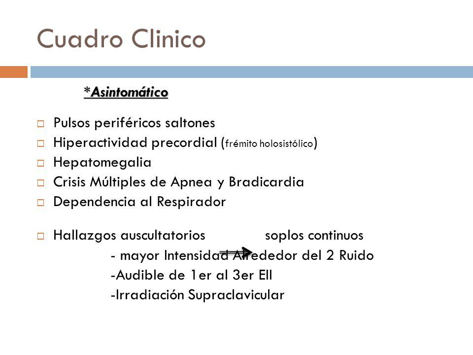 Cuadro Clinico *Asintomático Pulsos periféricos saltones Hiperactividad precordial ( frémito holosistólico ) Hepatomegalia Crisis Múltiples de Apnea y