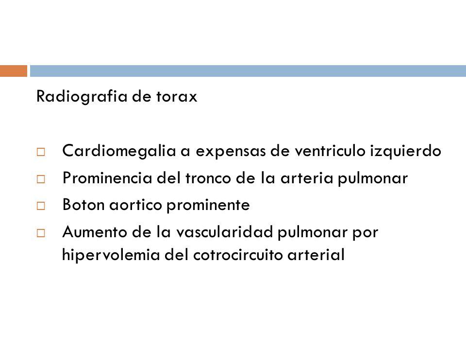 Radiografia de torax Cardiomegalia a expensas de ventriculo izquierdo Prominencia del tronco de la arteria pulmonar Boton aortico prominente Aumento d