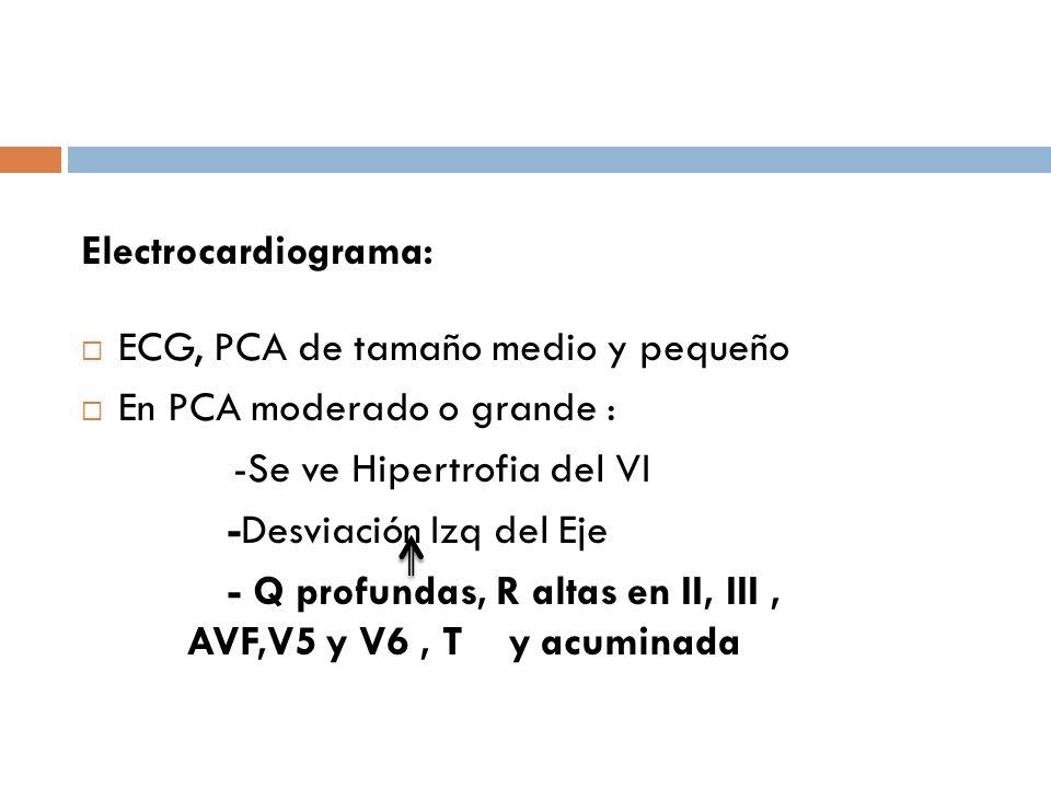 Electrocardiograma: ECG, PCA de tamaño medio y pequeño En PCA moderado o grande : -Se ve Hipertrofia del VI -Desviación Izq del Eje - Q profundas, R a