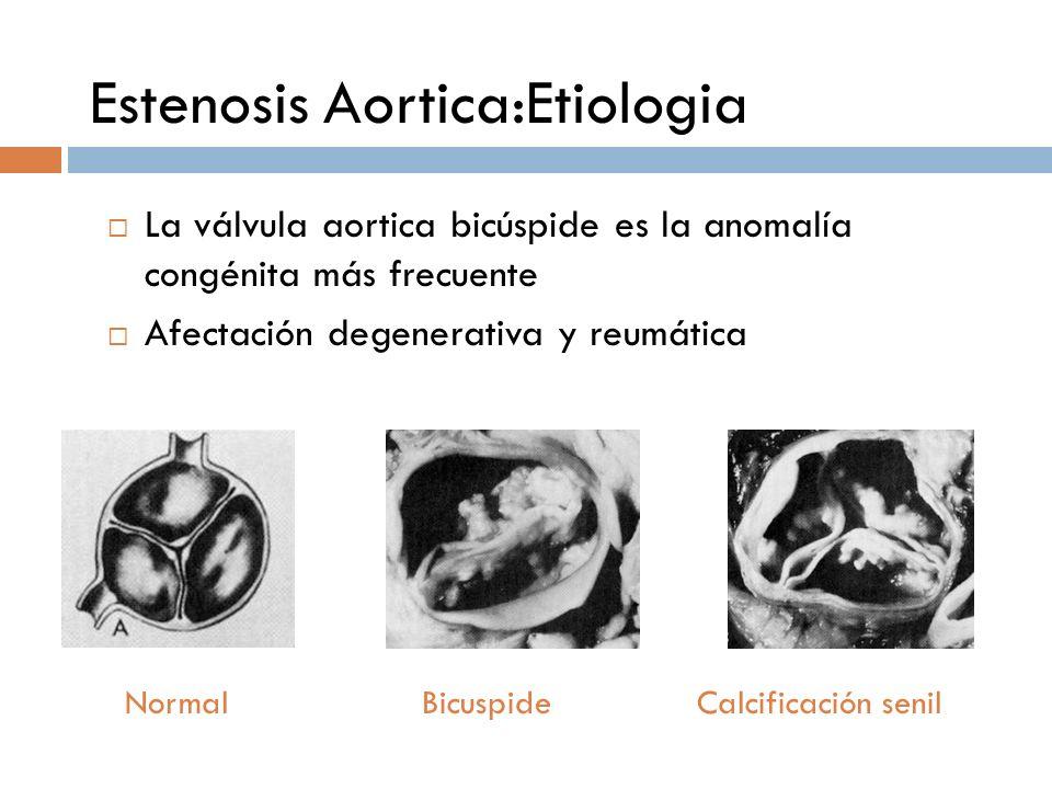 Estenosis Aortica:Etiologia La válvula aortica bicúspide es la anomalía congénita más frecuente Afectación degenerativa y reumática Normal Bicuspide C