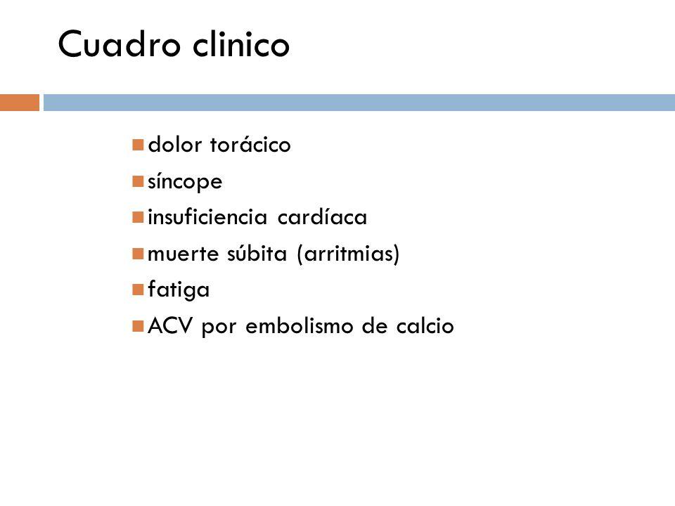 Cuadro clinico dolor torácico síncope insuficiencia cardíaca muerte súbita (arritmias) fatiga ACV por embolismo de calcio