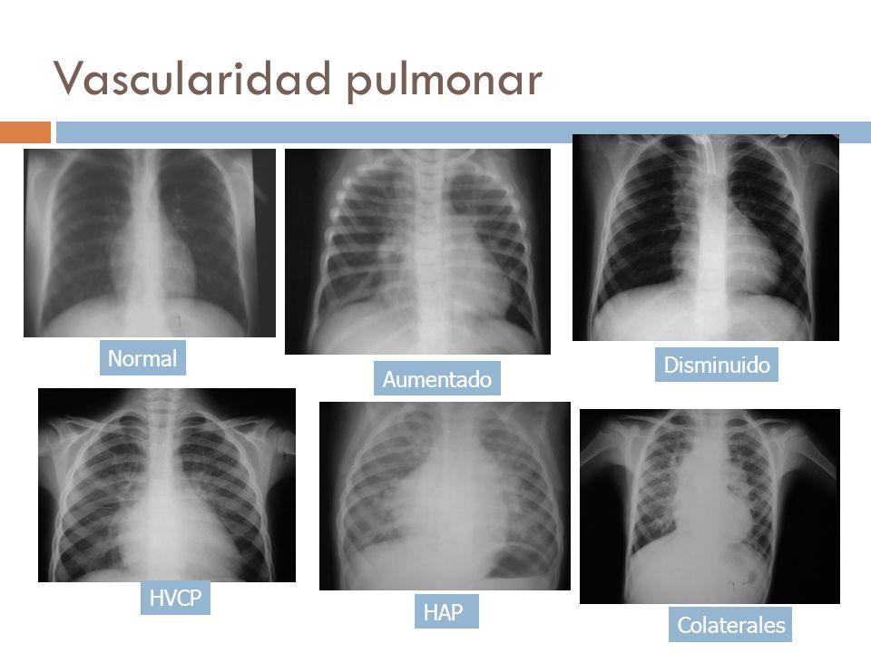 Vascularidad pulmonar Normal Aumentado Disminuido HAP Colaterales HVCP