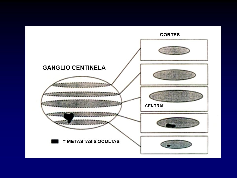 GANGLIO CENTINELA = METASTASIS OCULTAS CENTRAL CORTES