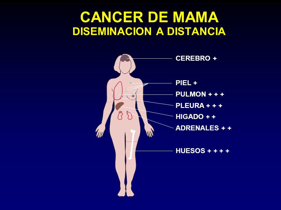 CANCER DE MAMA DISEMINACION A DISTANCIA CEREBRO + PIEL + PULMON + + + PLEURA + + + HIGADO + + ADRENALES + + HUESOS + + + +