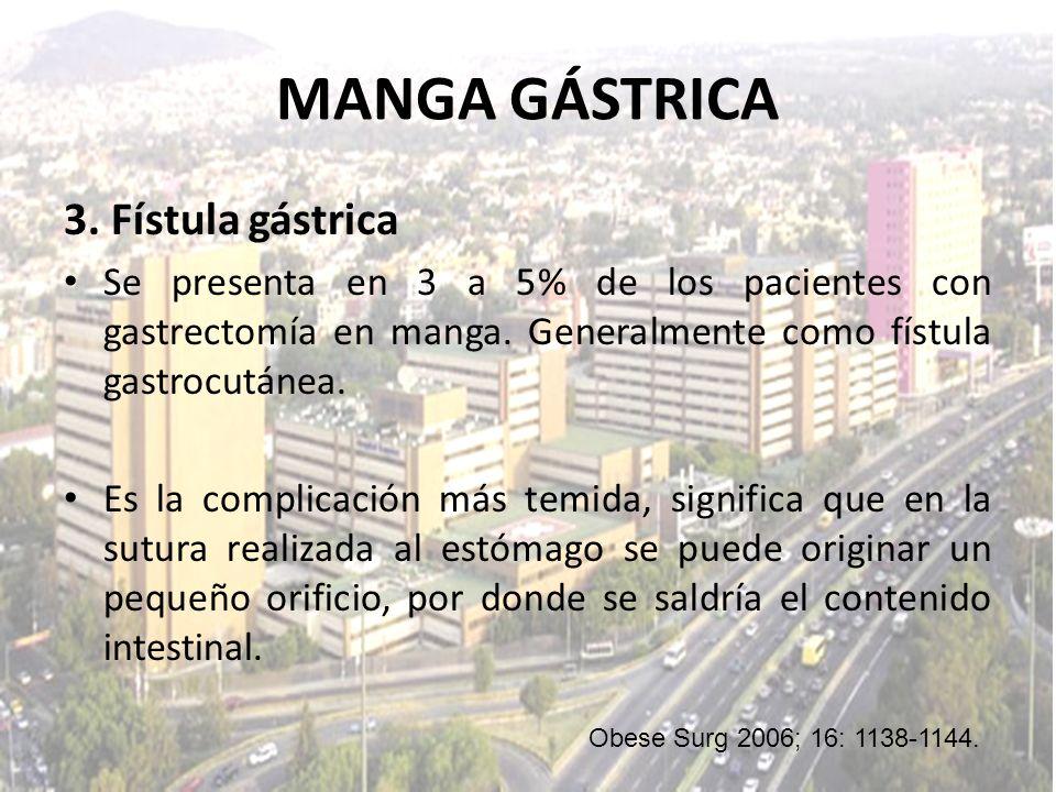3. Fístula gástrica Se presenta en 3 a 5% de los pacientes con gastrectomía en manga. Generalmente como fístula gastrocutánea. Es la complicación más