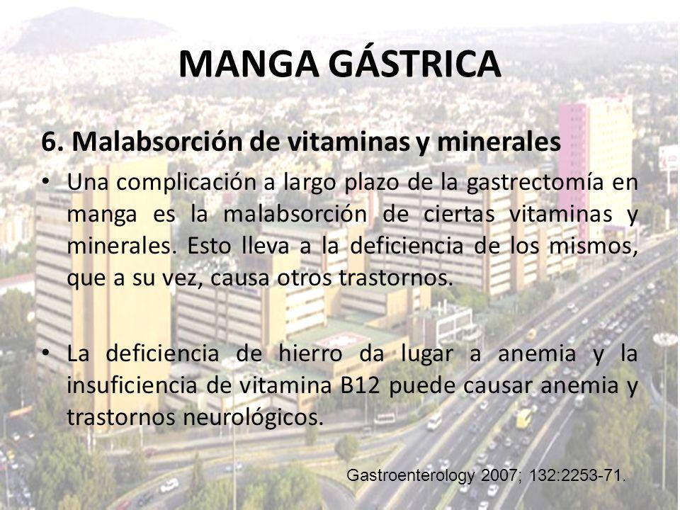 6. Malabsorción de vitaminas y minerales Una complicación a largo plazo de la gastrectomía en manga es la malabsorción de ciertas vitaminas y minerale