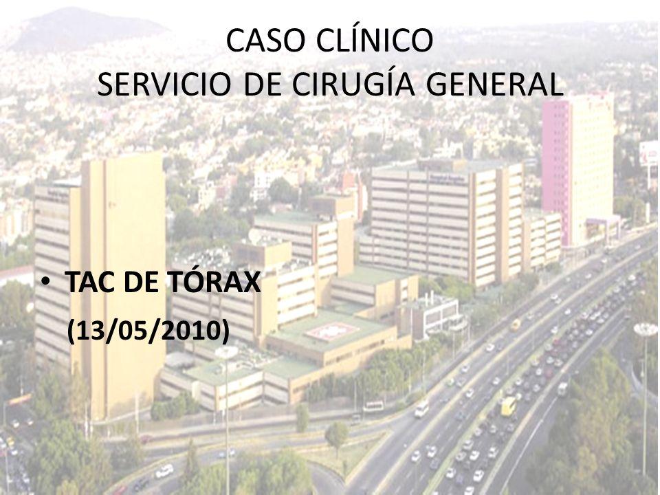 TAC DE TÓRAX (13/05/2010) CASO CLÍNICO SERVICIO DE CIRUGÍA GENERAL