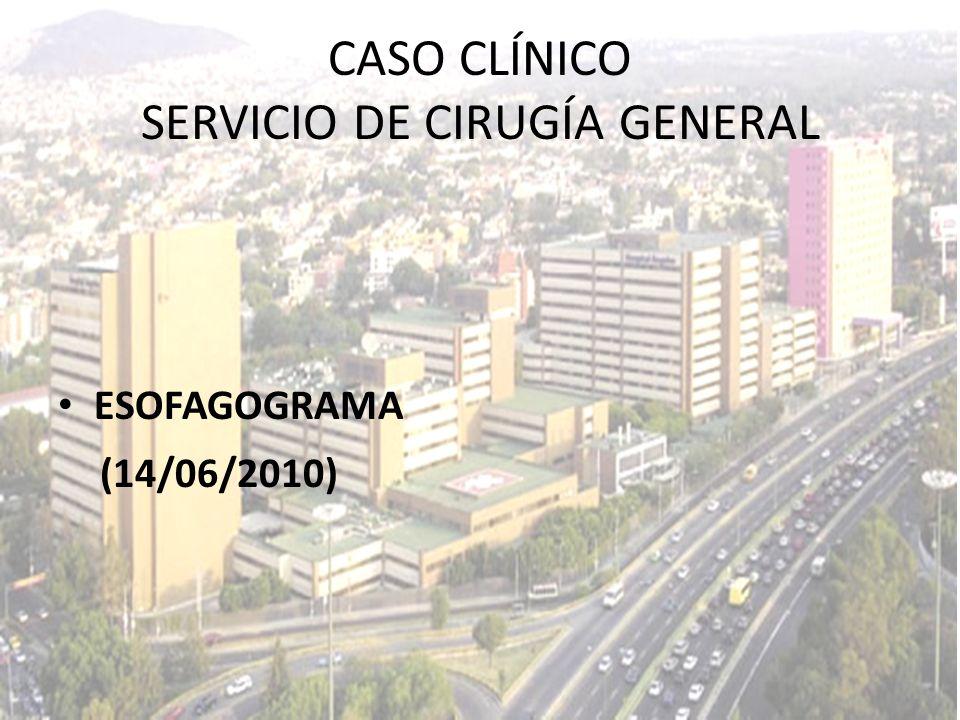 ESOFAGOGRAMA (14/06/2010) CASO CLÍNICO SERVICIO DE CIRUGÍA GENERAL