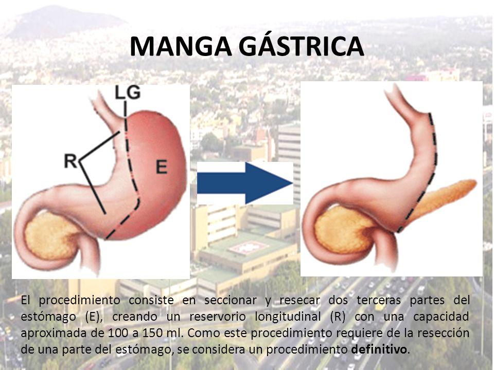 MANGA GÁSTRICA El procedimiento consiste en seccionar y resecar dos terceras partes del estómago (E), creando un reservorio longitudinal (R) con una c