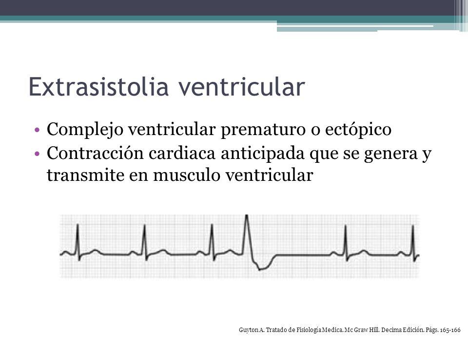 Extrasistolia ventricular Arritmia común 60% de hombres adultos Tabaquismo, cafeína, falta de sueno, estrés Sin relación con morbi/mortalidad 80% pacientes con Hx de IAM Desencadenantes de TV o FV Aumento en la mortalidad >10 p/hr o complejos Guyton A.