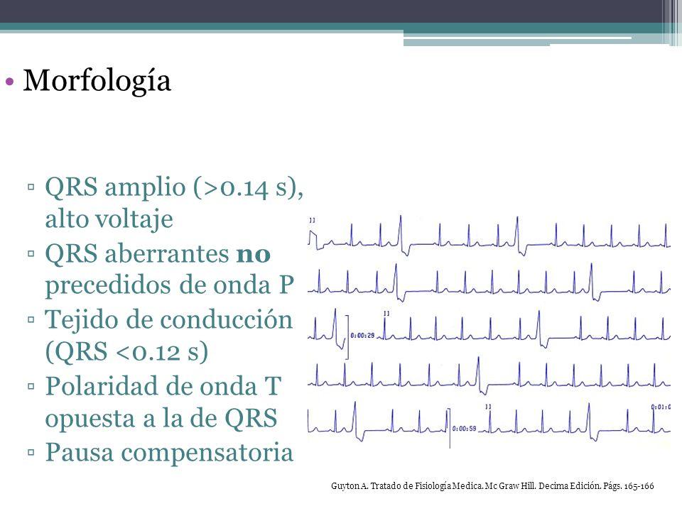 Extrasistolia ventricular Patrones Aisladas Bigeminal Trigeminal Pares Coplas >100 p/min: taquicardia ventricular Guyton A.