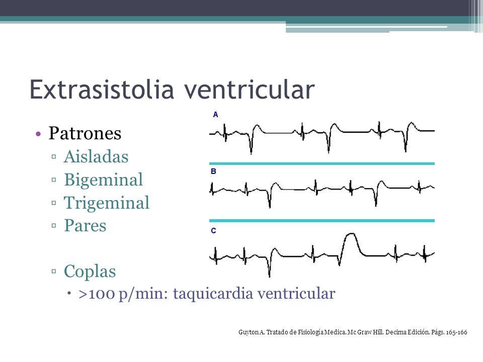 Extrasistolia ventricular Compensación Pausa compensatoria Intervalos RR iguales Conducción retrograda Reinicio del NS < pausa compensatoria Ondas P invertidas en DII, DIII y aVF Guyton A.