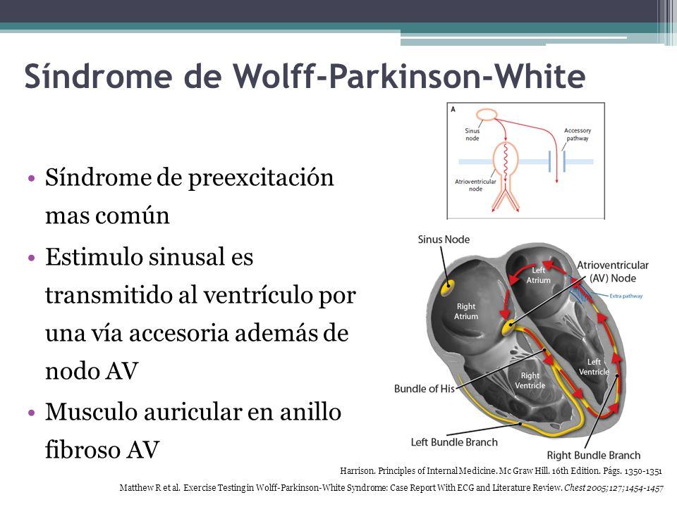 Síndrome de Wolff-Parkinson-White Preexitacion + taquicardia paroxística Anormalidad de Ebstein Prolapso mitral Miocardiopatía hipertrófica Harrison.