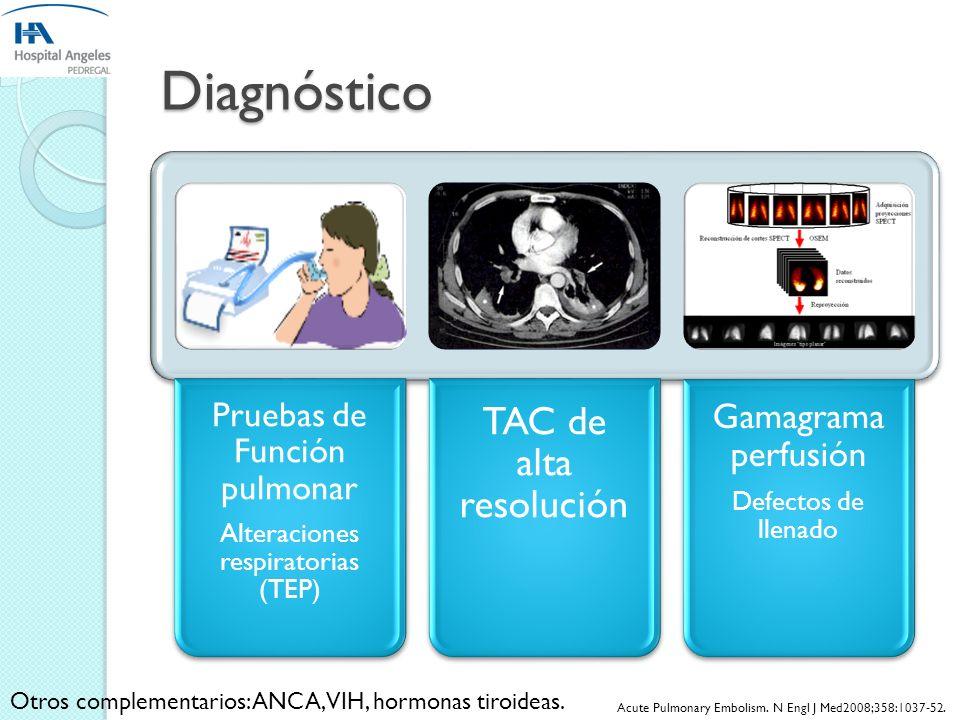 Diagnóstico Radiografía de Tórax Abombamiento Arteria Pulmonar EKG Desviación eje Derecha e HVD ECO Ventriculomegalia Chorro insuficiencia trícuspideo