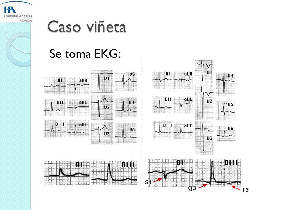 Caso Viñeta Laboratorios del día reportan: BH: Hb 10.6 mg/dl, hto 32, plaq 201, leucocitos 11,100 87/11 diferencial. QS: Urea 15, BUN 20, Cr 0.9. ES: