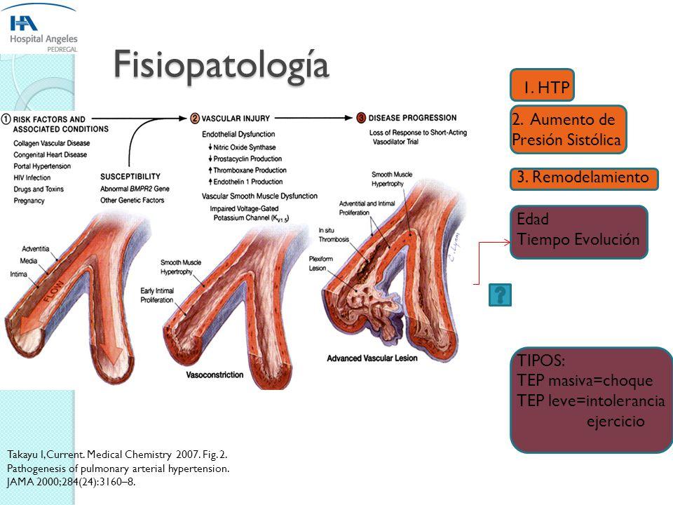 Histopatología Hipertrofia de la capa media de vasos. Fibrosis excéntrica y concéntrica de la intima. Recanalización de trombos con aspecto de memebra