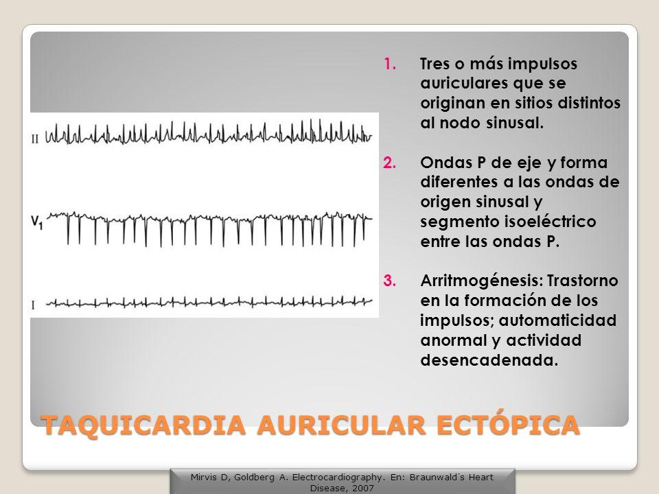 TAQUICARDIA AURICULAR ECTÓPICA 1.Tres o más impulsos auriculares que se originan en sitios distintos al nodo sinusal. 2.Ondas P de eje y forma diferen