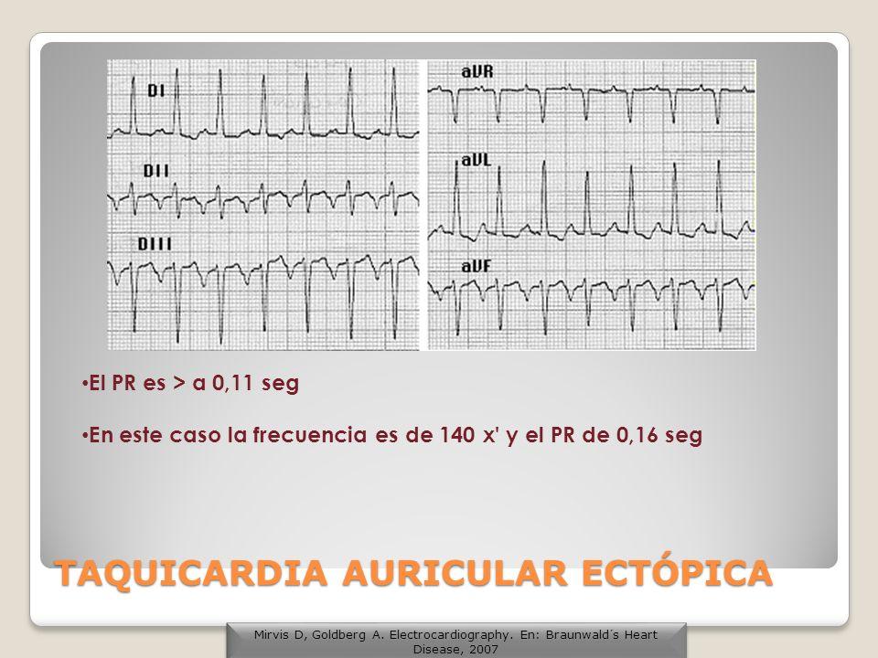 El PR es > a 0,11 seg En este caso la frecuencia es de 140 x' y el PR de 0,16 seg TAQUICARDIA AURICULAR ECTÓPICA Mirvis D, Goldberg A. Electrocardiogr