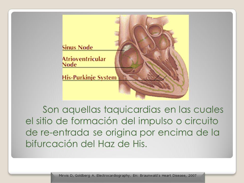 QT PROLONGADO Torsades de Pointes (TAQUICARDIA V HELICOIDAL) QT NORMAL Taquicardia Ventricular monofocal repetitiva autolimitada Taquicardias Ventriculares asociadas a displasia arritmogénica del ventrículo derecho Fibrilación ventricular http://library.med.utah.edu/kw/ecg/ecg_outline/Lesson3/index.html Taquicardias Ventriculares Taquicardia ventricular poli morfa