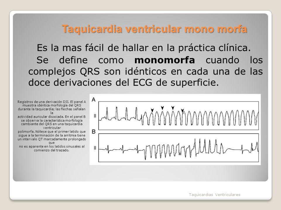 Taquicardia ventricular mono morfa Es la mas fácil de hallar en la práctica clínica. Se define como monomorfa cuando los complejos QRS son idénticos e