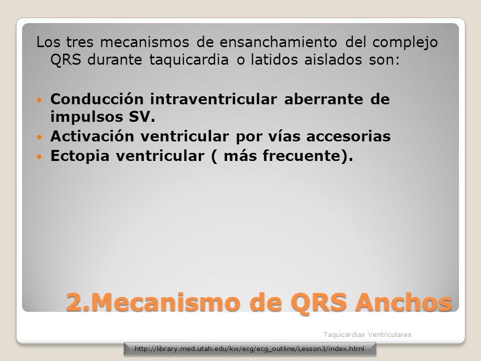 2.Mecanismo de QRS Anchos Los tres mecanismos de ensanchamiento del complejo QRS durante taquicardia o latidos aislados son: Conducción intraventricul