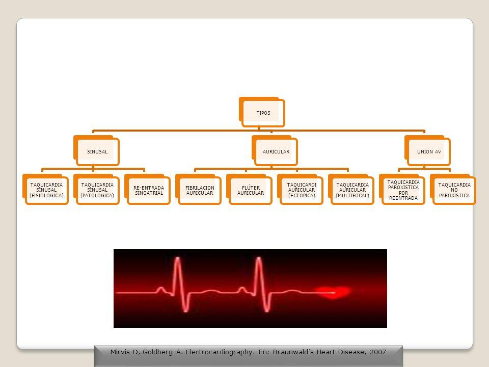 TAQUICARDIA VENTRICULAR HELICOIDAL Morfología por torsión alrededor de un punto localizado en la línea isoeléctrica.
